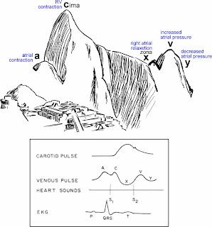 Medical MindMaps for USMLE Step 1: Jugular Venous Pulse