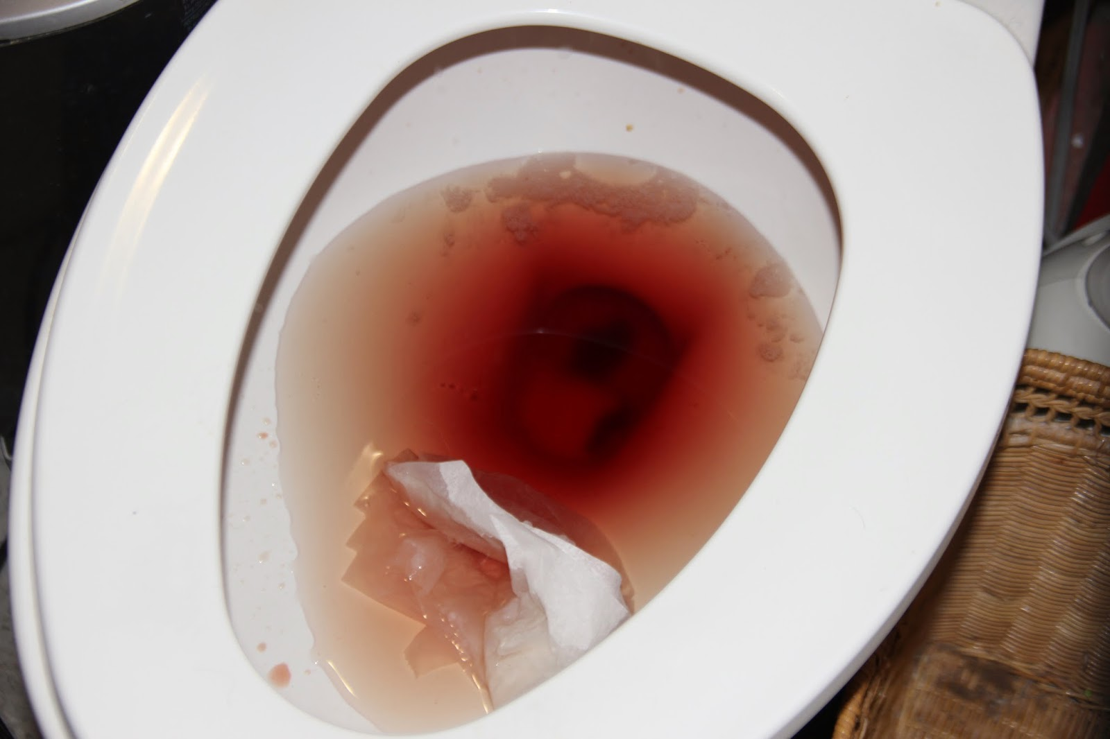 Red blood after bowel movement-5743