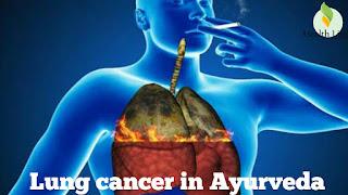 फेफड़ों के कैंसर (Lung cancer) का आयुर्वेदिक उपचार   lung cancer ke shuruaati lakshan,lung cancer ka achuk ilaj
