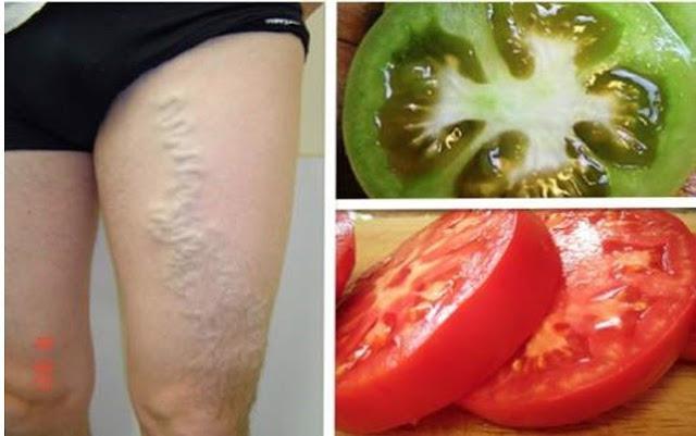 How to Heal Varicose Veins Using Tomato Like MAGIC!