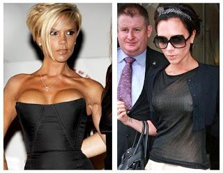 Victoria beckhams boob implants