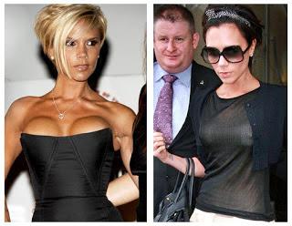 celebrity boob jobs victoria beckham plastic surgery