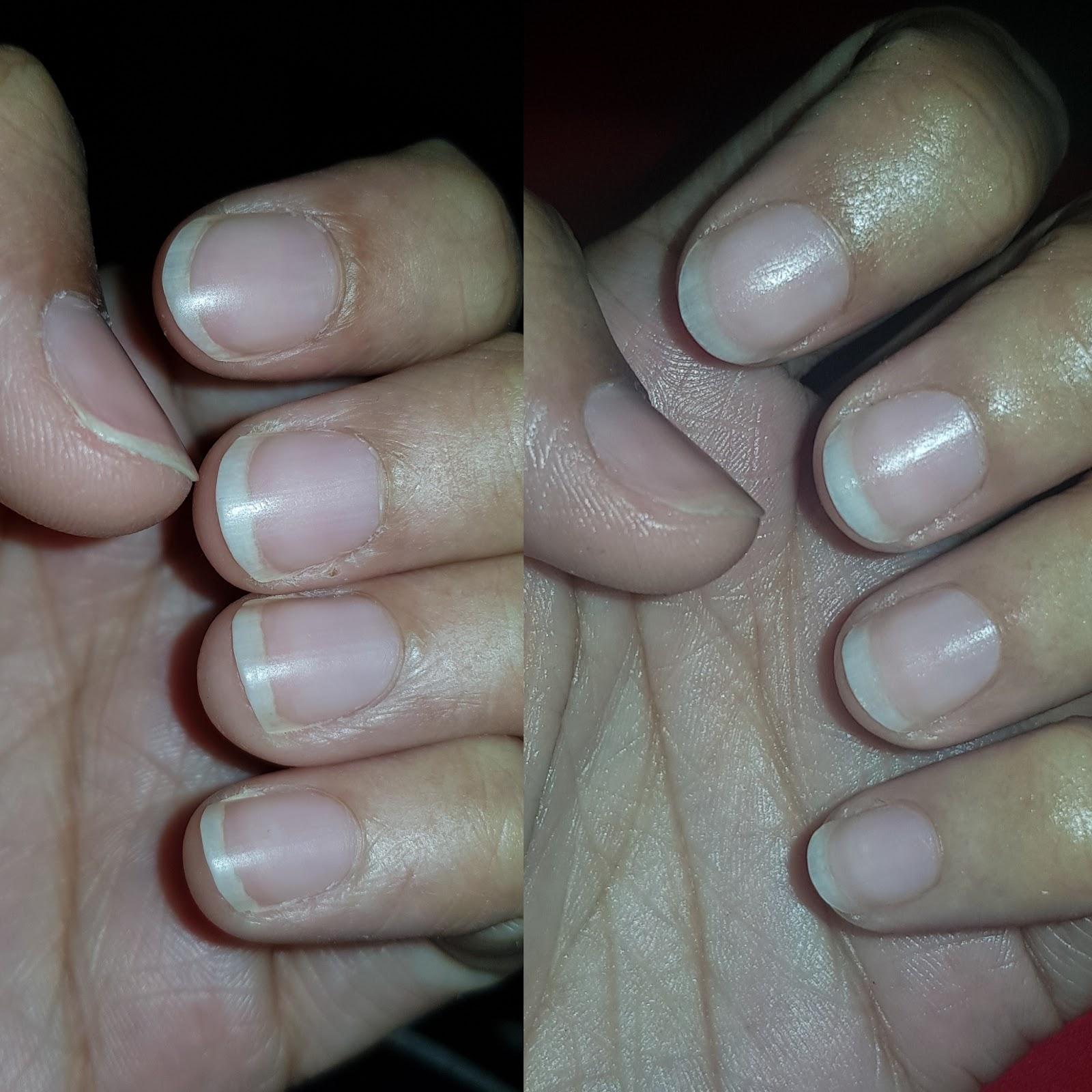 Dry chapped skin around nails?