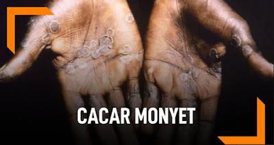 Cacar Monyet, Gejala, Penyebab dan Pengobatan Menurut WHO Terlengkap