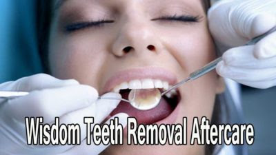 wisdom teeth removal aftercare tips