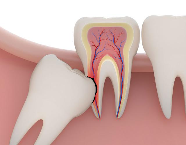 Có nên nhổ răng khôn