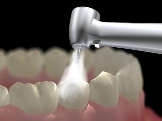 Trám răng ở đâu tốt nhất TPHCM cần phải có kỹ thuật, công nghệ cùng đội ngũ bác sĩ giỏi và tiên tiến