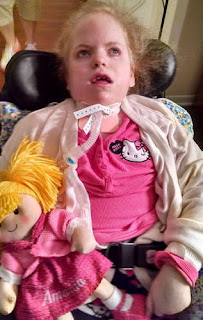 A girl suffering from the devastating effect of Sanfilippo syndrome pictures