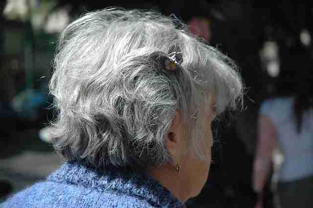Stres yapanların saçlarının beyazlaması