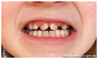 wann kommt welcher zahn