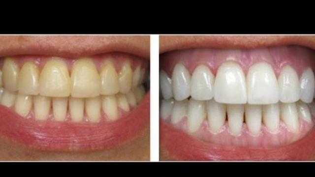 تخلص من تكلس الأسنان ورائحتها.. في دقيقتين فقط! بمكونين فقط ستودع طبيب الاسنان!