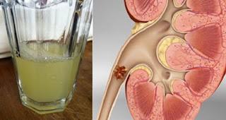 Minuman Ini Berkhasiat Mengeluarkan Batu Ginjal