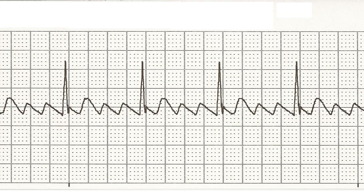 Float Nurse: EKG Rhythm Strips 27: Atrial Rhythms