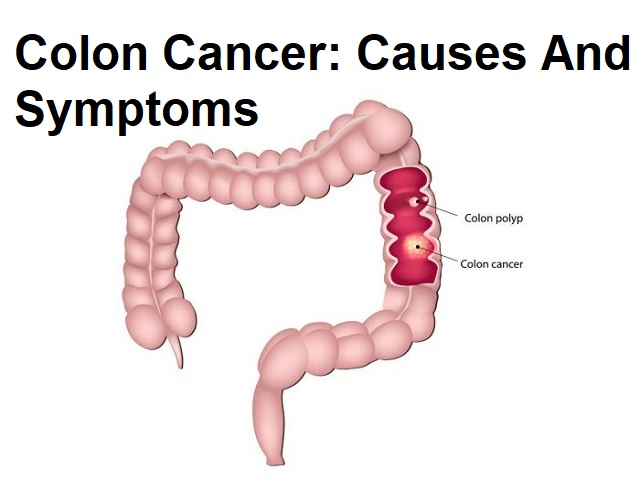 Colon Cancer Causes And Symptoms