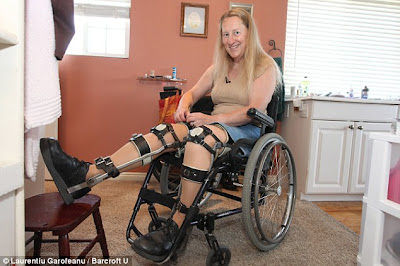 Woman Asked Doctors To Cut Her Spinal Cord So She Can A Wheelchair