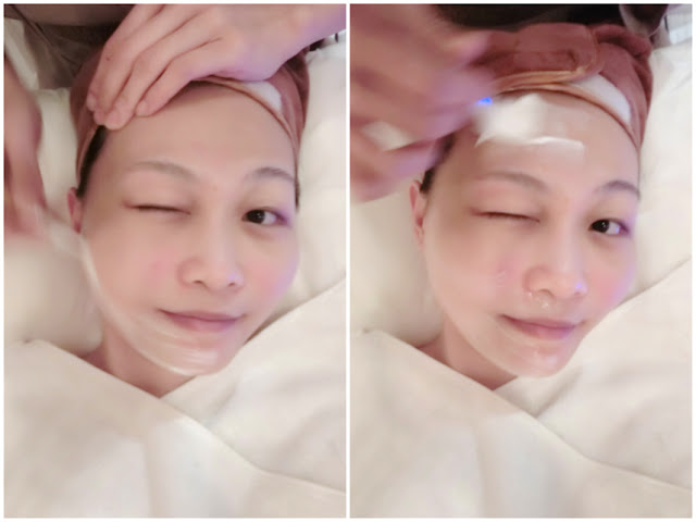 bionaturebeauty, treatment, lovecath, catherine, skincare, beauty, 射頻, 夏沫