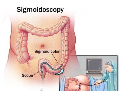 The sigmoidoscope and me...