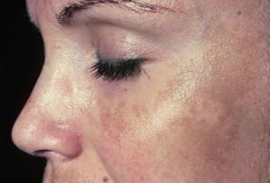 Cara menghilangkan flek di wajah secara alami.