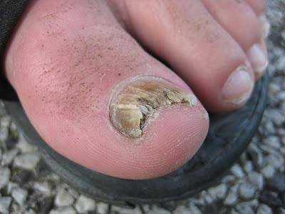 ugly toenail fungus