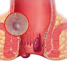 Cara menghilangkan benjolan di anus akibat ambeien