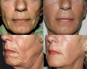 deep facial lines