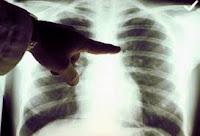 Obat TBC / Flek Paru-Paru Alami, Ampuh Mengobati TBC / Flek Paru-Paru Secara Alami