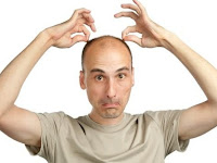 Common Cause Baldness Human Hair