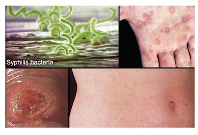 Những dấu hiệu và biểu hiện của bệnh giang mai