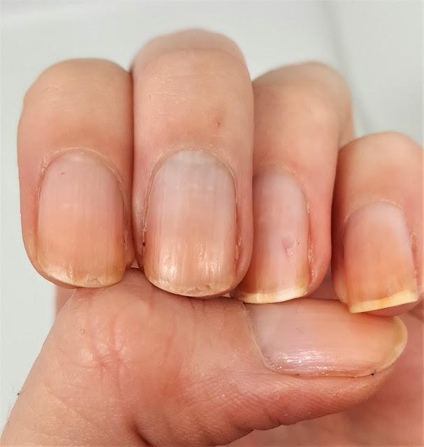 Linke Hand nach 6 Tagen
