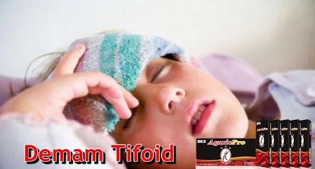 Obat Demam Tifoid (Tifus) Secara Tradisional