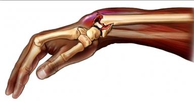 umflarea după fractura articulației încheieturii