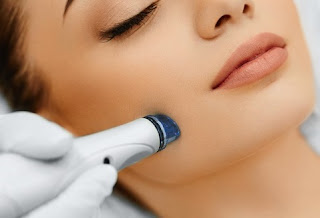 how many microdermabrasion treatments are needed for acne scars