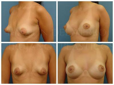 seno tuberoso antes y después