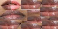 Remèdes naturels des lèvres noires