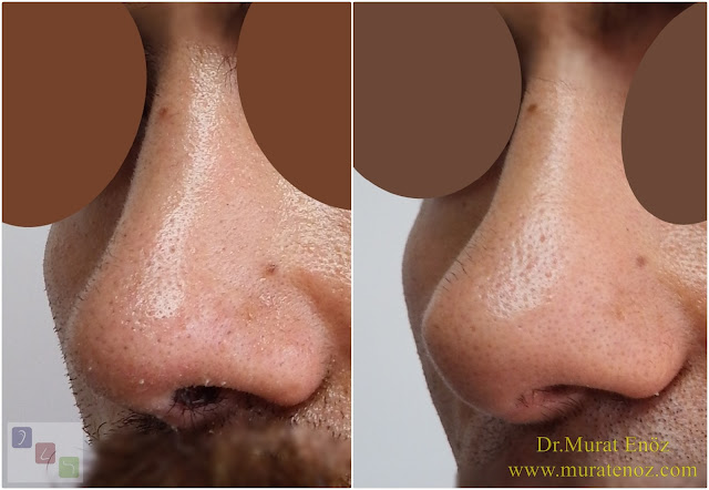Revision Nose Job Surgery For Men in Istanbul - Revision Male Rhinoplasty in Istanbul - Men's Revision Rhinoplasty in Turkey - Revision Nose Reshaping For Men in Istanbul - Mens Revision Rhinoplasty in Istanbul - Revision Nose Job Rhinoplasty For Men in Istanbul - Best Revision Rhinoplasty For Men Istanbul - Revision Nose Aesthetic For Men in Istanbul - Male Revision Nose Operation in Istanbul - Male Revision Rhinoplasty Surgery in Istanbul - Male Revision Rhinoplasty Surgery in Turkey - Male Revision Nose Aesthetic Surgery in Istanbul - Revision Rhinoplasty In Mens Istanbul