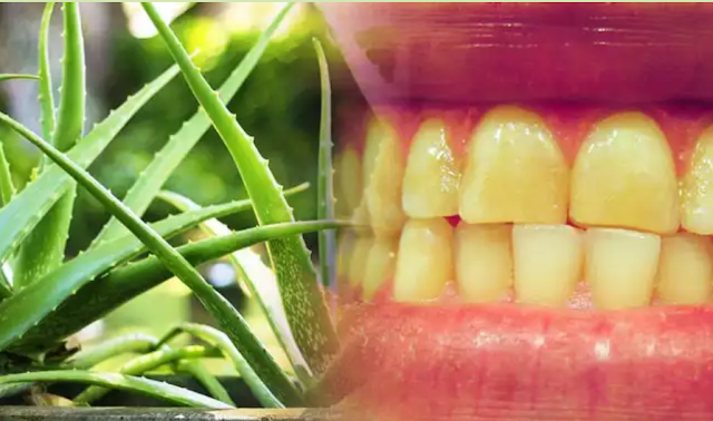 Aloe Vera Do Auch An Experiment in 2 Days The Yellowing Of The Teeth Will Remove