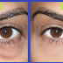 Simple Tricks And Tips To Remove Under Eye Dark Circles Naturally