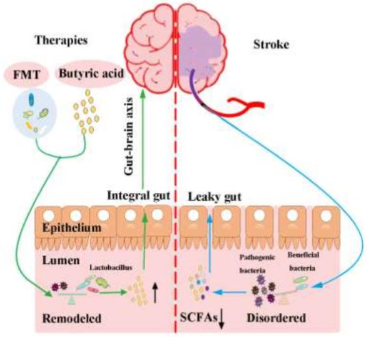 図:腸脳相関と治療法