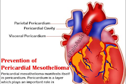 Who is Worried About Prevention of Mesothelioma Cancer and Why You Should Pay Attention