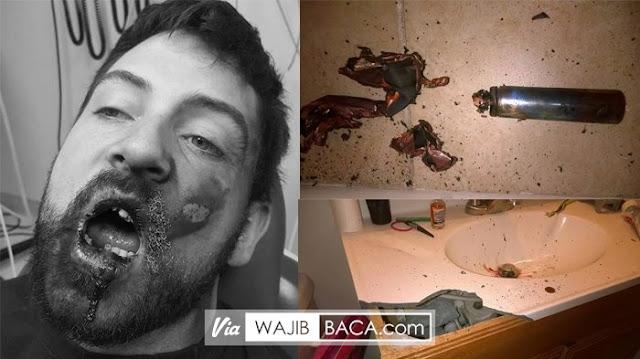 Hati-hati, Rokok Elektrik Menghancurkan Wajah Pria Ini, Ini Alasannya