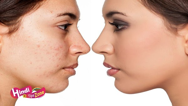 Remove Pimples Marks Naturally | एक दिन में हटाये पिम्पल के दाग
