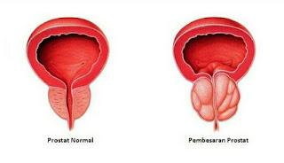 Gejala Penyakit Kanker Prostat