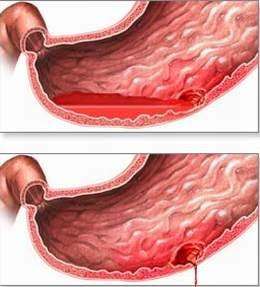Phương pháp điều trị viêm đại tràng xuất huyết