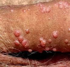 Cara Mengobati Penyakit Sifilis Pada Pria