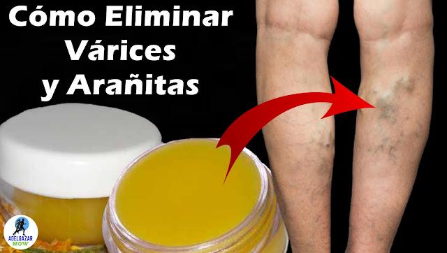 Cómo Eliminar Várices y Arañitas en las Piernas con Este Remedio Casero de Caléndula