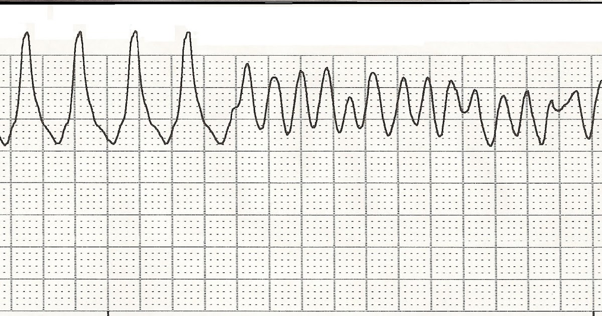 Cardiac strip acls rhythm