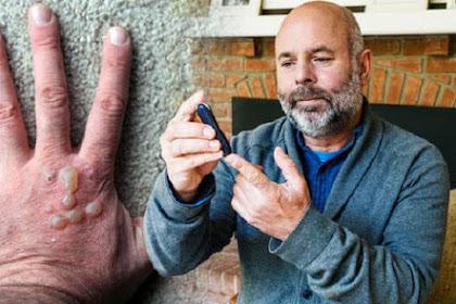 Lima Gejala Diabetes Tipe 2 pada Kulit yang Harus Diwaspadai