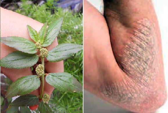 """Jangan Bu""""nuh Tanaman Ini..!!! 13 Penyakit Ini Bisa Di Sembuhkan Bila Anda Meraciknya Menjadi Obat, Berikut Caranya.."""