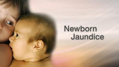 newborn, prolong jaundice, jaundis, shaklee