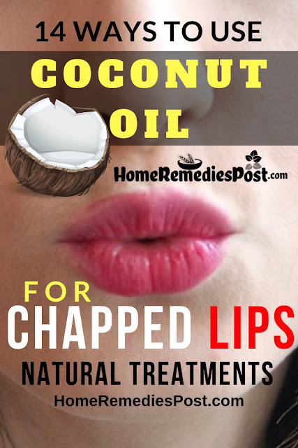 Coconut Oil For Chapped Lips, Chapped Lips, Dry Lips, How To Get Rid Of Chapped Lips, How To Get Rid Of Dry Lips, How To Cure Chapped Lips, Chapped Lips Remedy, Home Remedies For Chapped Lips, Home Remedies For Dry Lips, How To Treat Chapped Lips, Chapped Lips Treatment, Chapped Lips Home Remedies, Remedy For Chapped Lips, Cure Chapped Lips,